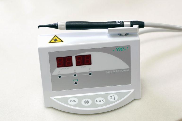 虫歯診断用レーザー